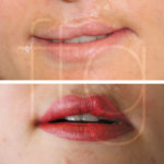 Cleft Lip treatment